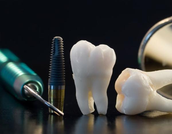 Implantes Dentários Múltiplos